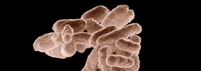 Bild på bakterier av arten E.coli